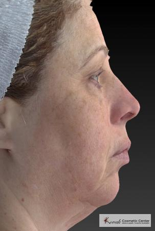 Tyte And Bryte – Face: Patient 3 - Before Image