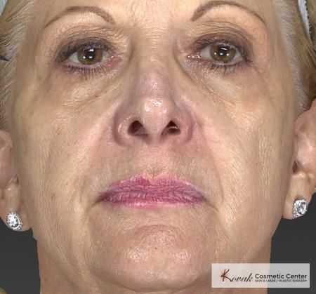 Injectables - Face: Patient 1 - Before