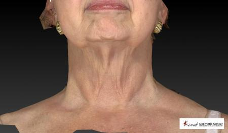Kybella: Patient 3 - After Image 3