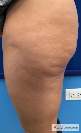 Cellulite Reduction: Patient 4 - Before 2