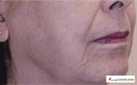 Tyte & Bryte Photorejuvenation on the face of a 57 year old female - After Image