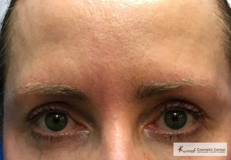 Upper eyelid treatment using Agnes on a 49 year old woman - Before Image