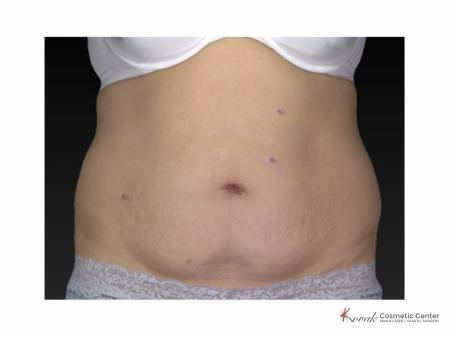 Slim Tyte: Patient 2 - Before Image