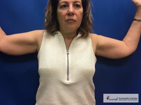 Laser Liposuction: Patient 5 - Before Image