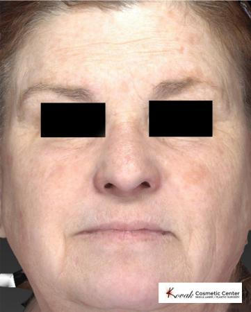 Halo™: Patient 1 - Before Image