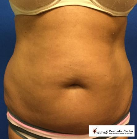 Slim Tyte: Patient 1 - Before Image