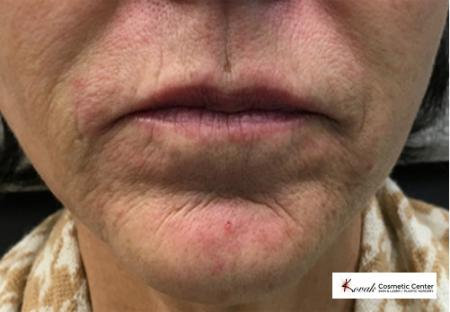Restylane® Silk: Patient 4 - Before Image