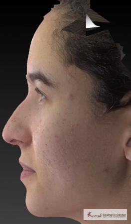 Venus Viva: Patient 3 - After Image 2