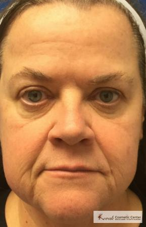Restylane® Silk: Patient 13 - After Image