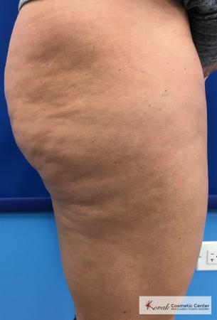 Cellulite Reduction: Patient 4 - Before and After 3