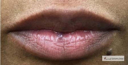 Lumps & Bumps: Patient 2 - Before Image