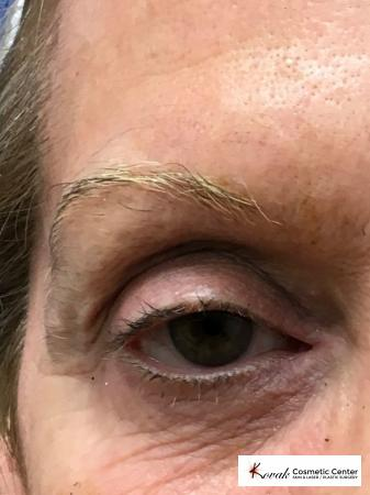 Modified Botox Brow Raise on a 64 year old Woman - After Image