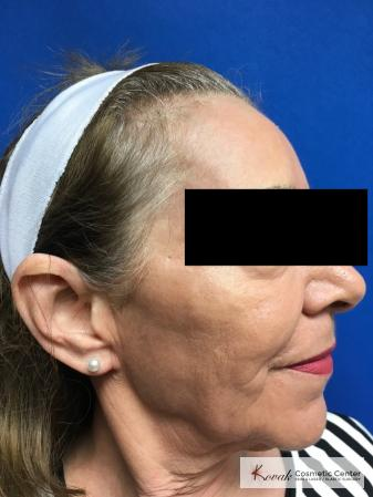 Full Face Laser Skin Resurfacing on a 70 year old woman - After Image 3