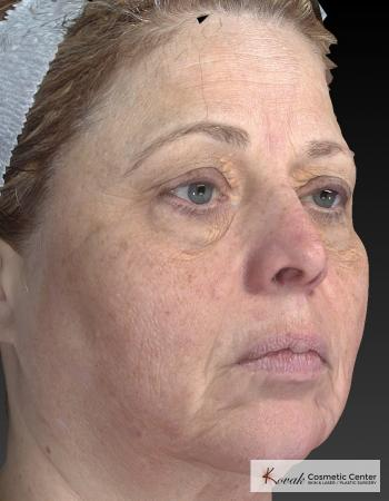 Tyte And Bryte – Face: Patient 3 - Before and After Image 5