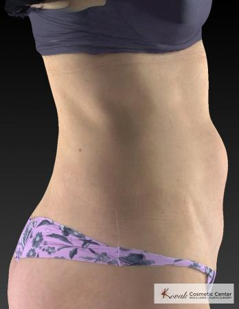Slim Tyte: Patient 9 - Before Image