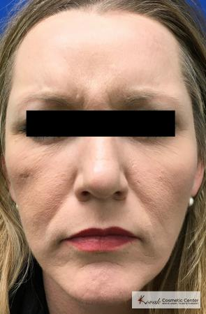 Injectables - Forehead: Patient 8 - After Image