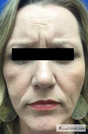 Injectables - Forehead: Patient 8 - Before Image