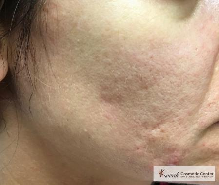 Acne Scars treated with Venus Viva on 35 year old woman - Before and After Image 2