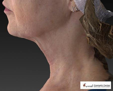 Kybella: Patient 2 - After Image 4