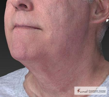 Kybella: Patient 4 - After Image 3