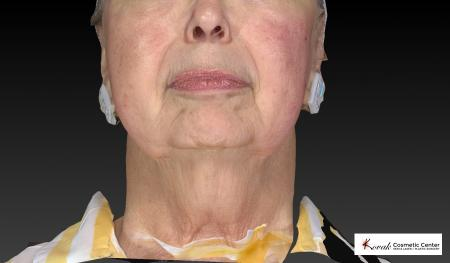 Kybella: Patient 3 - Before Image 3