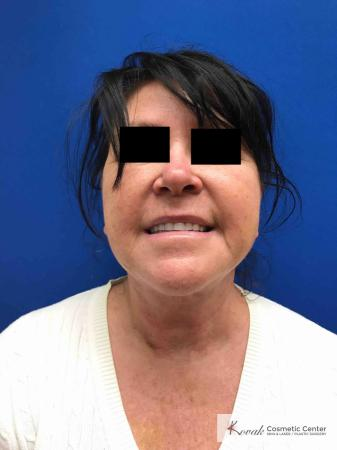 Neck Lift: Patient 2 - After Image