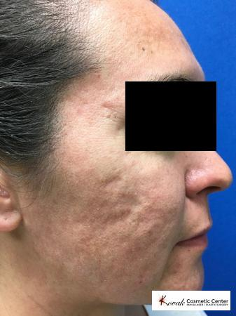Filler for Acne Scars using Juvederm on a 32 year old female - Before Image