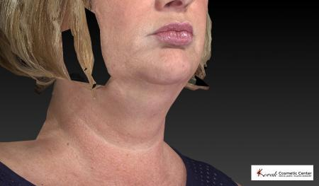 Kybella: Patient 1 - Before Image 2