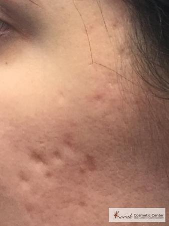 Acne Scars treated with Venus Viva on 28 year old woman - Before and After Image 2