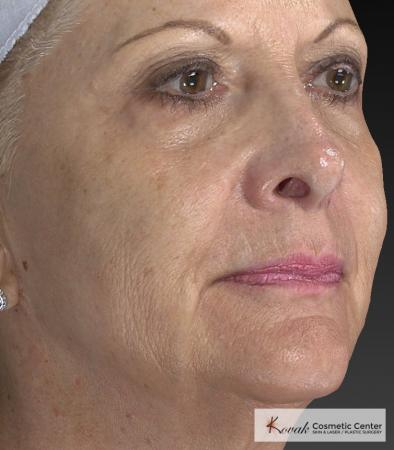 Injectables - Face: Patient 1 - After 3