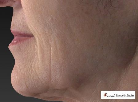 Restylane® Silk: Patient 2 - Before Image 3