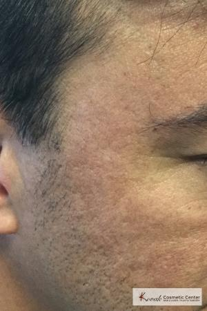 Acne Scars treated with Juvederm on 47 year old male - After Image 2