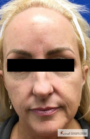 Sculptra®: Patient 8 - Before Image
