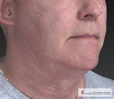 Kybella: Patient 4 - Before and After Image 4