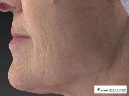 Restylane® Silk: Patient 2 - After 3