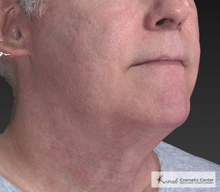 Kybella: Patient 4 - After Image 4