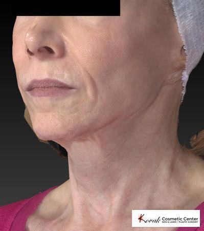 Sculptra®: Patient 1 - After 4