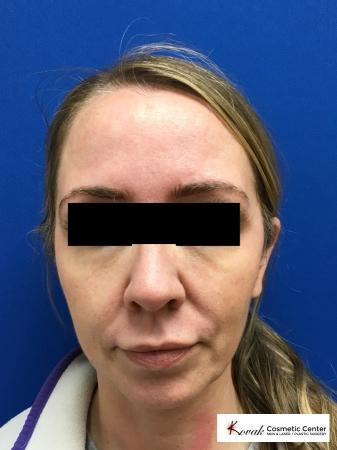 Sculptra®: Patient 7 - Before Image