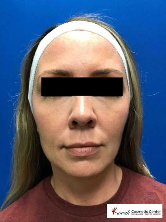 Sculptra®: Patient 7 - After Image