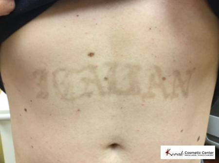 Tattoo Removal: Patient 1 - After Image 1