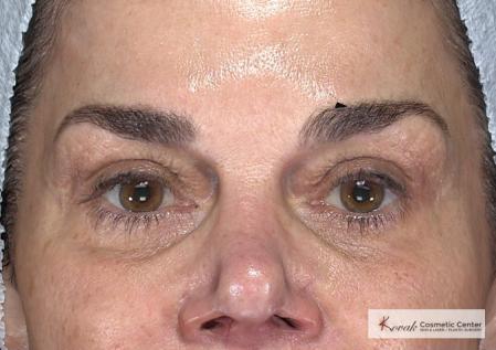 Laser Skin Resurfacing - Face: Patient 2 - After Image 4