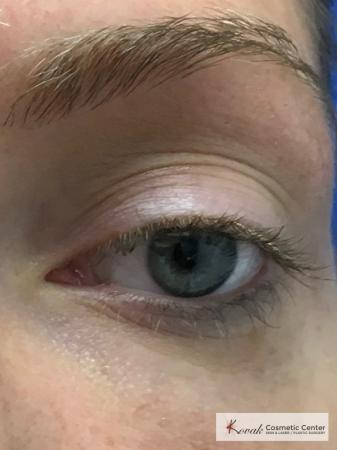 Dark Circle Treatment with Restylane Silk on a 29 year old female - After 2