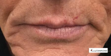 Restylane® Silk: Patient 3 - Before Image