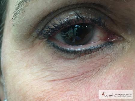 Under Eye Wrinkle Treatment with Agnes - Before Image