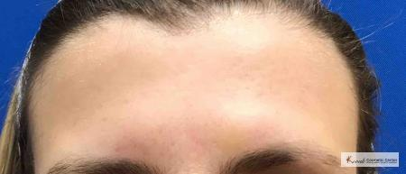 Restylane Silk for Forehead Lines on 43 year old female - After