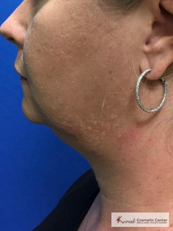 Laser Liposuction of the neck of a 44 year old female - Before Image