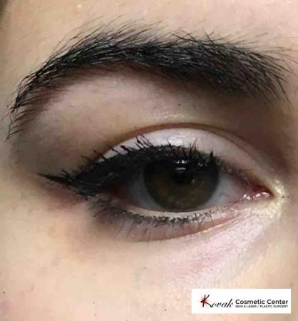 Eye Treatments: Patient 1 - After Image