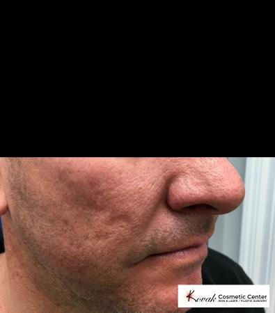 Juvéderm® XC: Patient 1 - Before Image