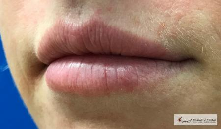 Lip Augmentation: Patient 2 - After Image