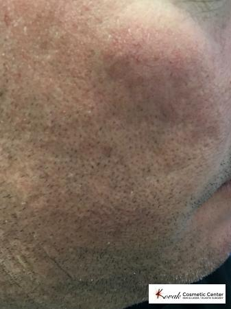 Acne Scars treated with Juvederm on 45 year old male - Before Image